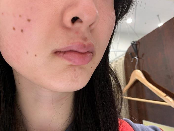 デュアルピール@湘南美容外科クリニックの体験口コミ