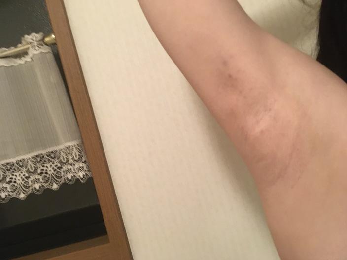 underarm-botox-day1