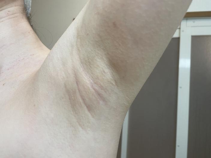 underarm-botox-after-3days-left