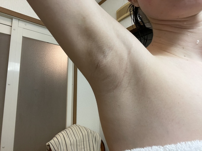 underarm-botox-after-5days-right